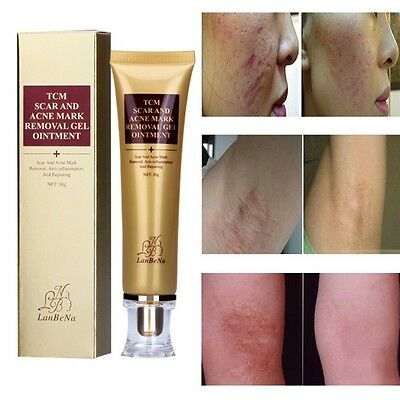 30g Skin Keloid Scar Treatment Gel Cream Spots Removal Stretch Marks Cream