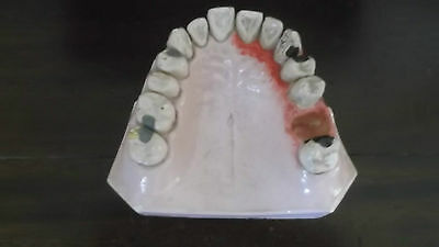 Rare Unusual Antique Plaster Anatomical Model Of Diseased Lower Jaw Gums & Teeth