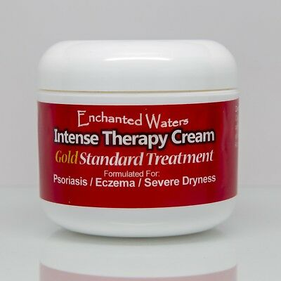 Medicated Cream For Eczema, Psoriasis, Rosacea, Dermatitis, Shingles and Rashes