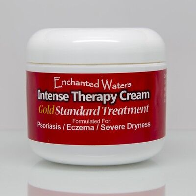 Medicated Cream Treatment for Eczema Psoriasis Rosacea Dermatitis Shingles Rash