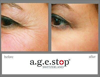 Age Stop Switzerland Powerful Competitor of Dior Cream. UK based. Anti-Ageing