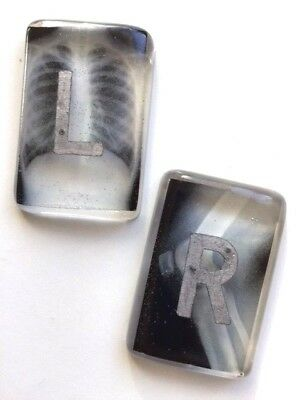 Clear X-ray image Radiography Markers - L&R - choose your own initials