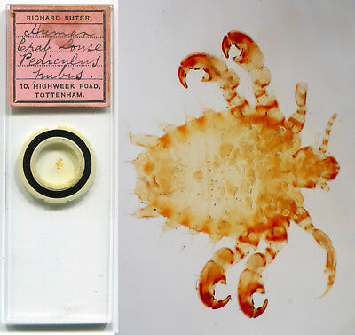 Pubic Crab Louse by R. Suter Microscope Slide
