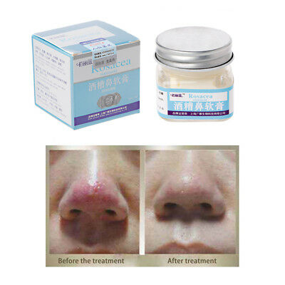 Medicine Herbal Ointment For Rosacea Acne Red Nose Redness Skin Acne Treatment