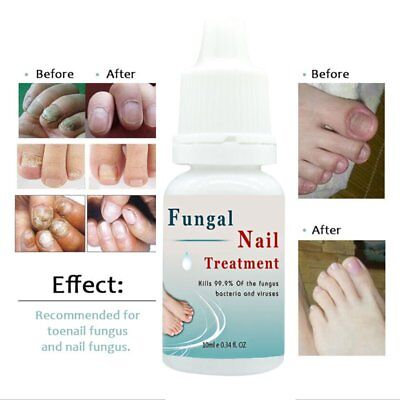 100% Plant Extracts Feet Care Nail Treatment Liquid Fungal Ringworm RemovXZ