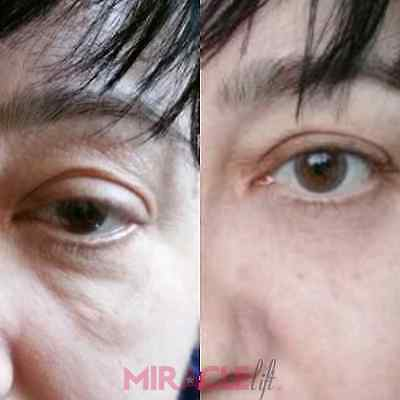 Miraclelift 3 minute facelift serum same instantly ageless but cheaper
