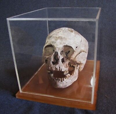 AUTHENTIC Human Skull - Real Genuine Antique Vintage Skull VERY OLD- Articulated