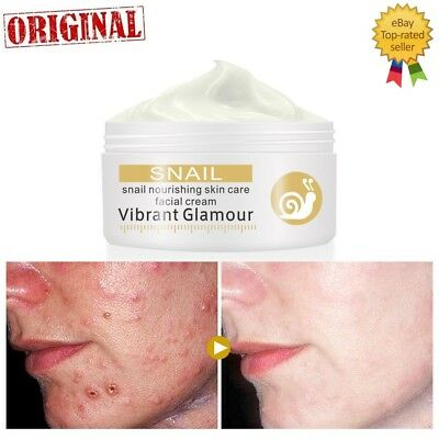 Snail Repairs Face Cream Remove Wrinkles Acne Whitening Pigment Spots Brighten