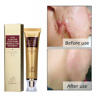 Acne Scar Removal Super Cream Blackhead Scar Remover Cream Pimple Pore Cleaner