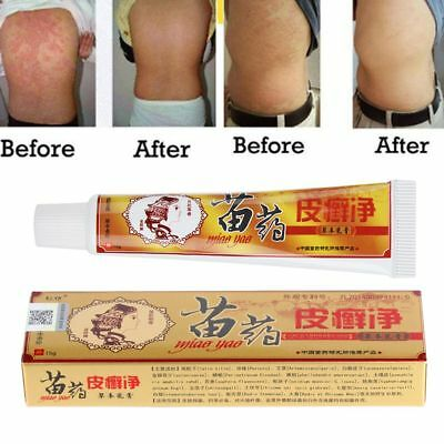 Manus Psoriasis Ointment Chinese Herbal Formula Dermatitis Eczema Treatment