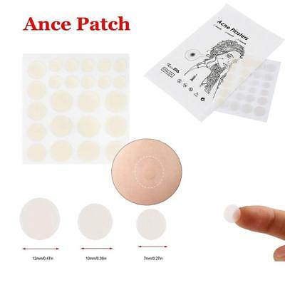 24 Patches Cosrx Acne Pimple Master Patch Face Spot Scar Care  Stickers