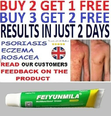 Psoriasis Eczema Rosacea Dermatitis Anti Bacterial Treatment Cream Gel UK
