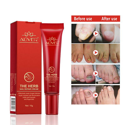 15ml Anti Fungal Nail Treatment Cream Toe Finger Nail Fungus Infection Treatment