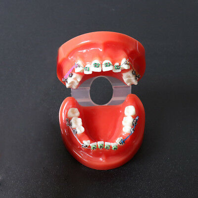 Dental Orthodontic Teeth Study Model With Brackets Chain Ties Arch Wire 3005 Red