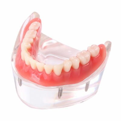 Dental Implant Overdenture Inferior Teeth Model Lower Jaw With 4 Implants 6003