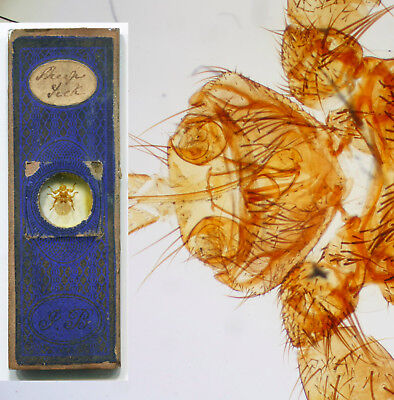 Sheep Tick by John Barnett, Microscope Slide