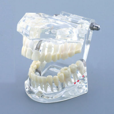 Typodont Teeth Dental Implant Model Restoration Demo Study Analysis Transparent