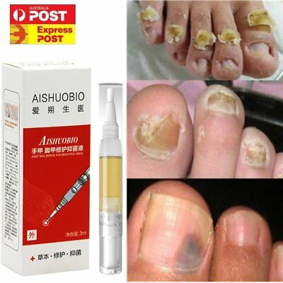 Fungal Nail Treatment Liquid Pen Nail Finger Toe Repair Onychomycosis Removal F1