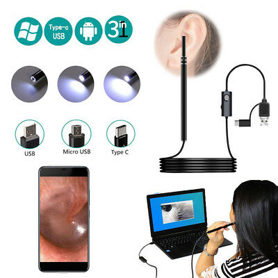 IPhone Otoscope Camera with Light Scope 0.3MP Cleansing Tool Endoscope Type C US
