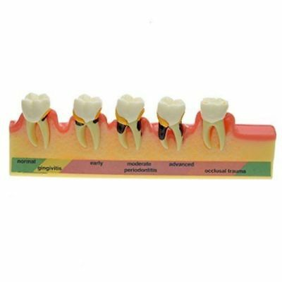 Dental Periodontal Disease Assort Tooth Typodont Model Education Teaching Model
