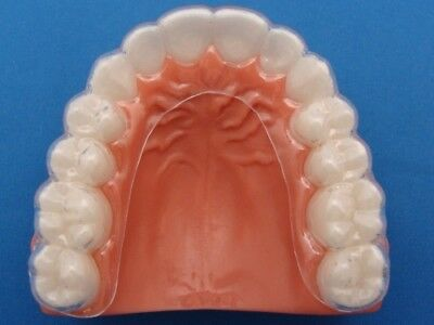 Custom Fit Dental Orthodontic Essix Retainer The same as your othodontists