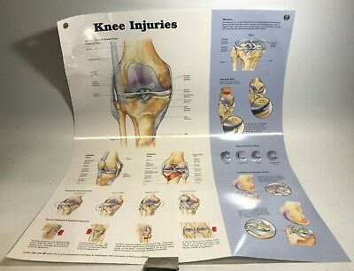 The Knee Injuries Anatomical Charts 20x26 Laminated