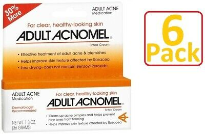 Acnomel Adult Acne Medication 1.3oz Always FRESH! - 6 Pack