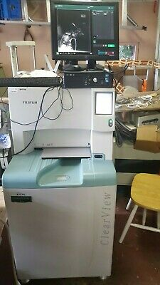 mamography cr aquire xray ClearView fuji cr with mammo printer