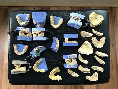 Vintage Dental Teeth Molds Huge Lot ! Impressions Glidewell Laboratories Dentist