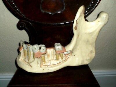 Rare Antique 19C Large Plaster Anatomical Dentist Model Of Jaw Bone/Teeth & Gums
