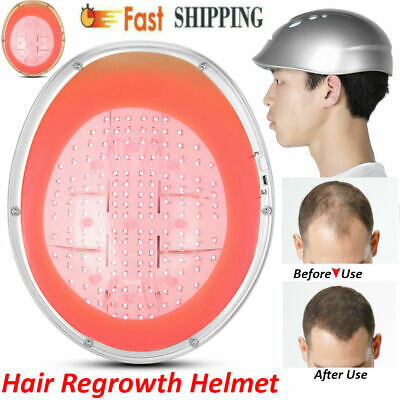 LLLT Hair Loss Therapy Laser Cap 160Diodes Laser Hair Growth System Helmet