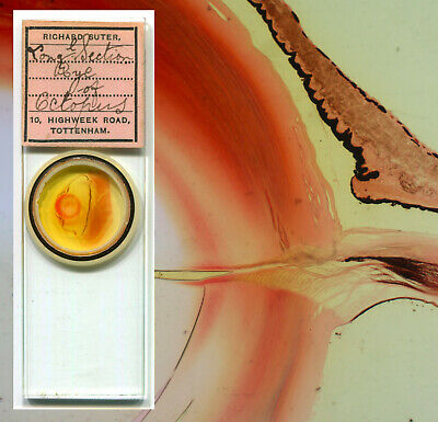 Octopus Eyeball Microscope Slide - by R. Suter