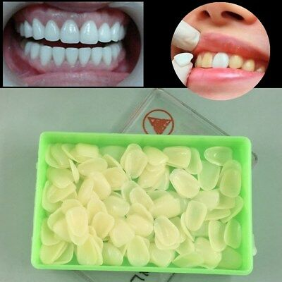 100Pc White Dental Ultra-Thin Whitening Veneers Resin Teeth Upper Anterior Shade