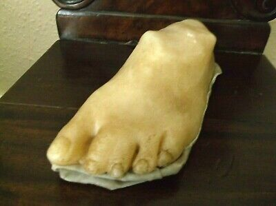 Rare Antique Anatomical French Wax Medical Webbed Foot Moulage Conjoined Toes