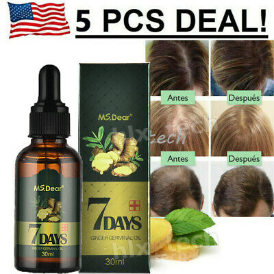 Fast 7 Days Hair Growth Essential Oil Loss Natural Ginger Ginseng Regrowth Serum