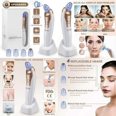 Mother Day's Gift - Blackhead Remover,Vacuum Suction USB...