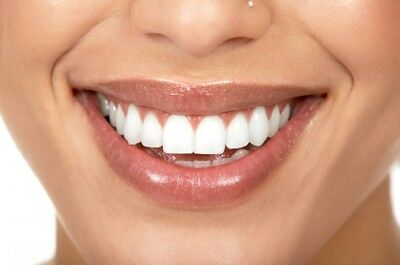 1 x 3ml 30% Teeth Whitening Gel - Top Up Gel - NON PEROXIDE