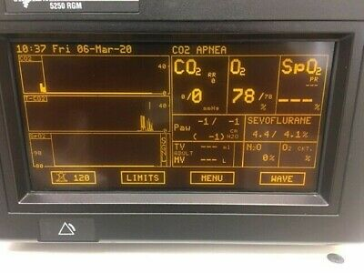 Ohmeda 5250 RGM Anesthesia Gas Monitor DISPLAY ONLY