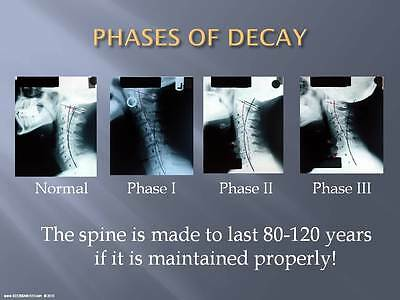 The Chiropractic Report Of Findings Powerpoint Lecture! - See300Aweek