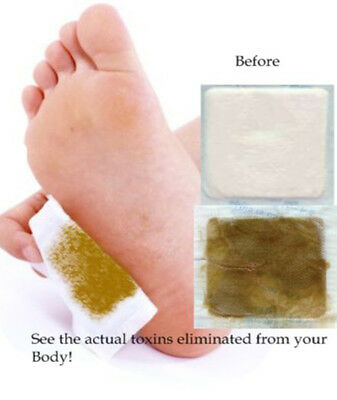 2 Packs (4XPcs) Hot Sell Detox Feet Patches Remover Body Toxins Weight Loss Pad