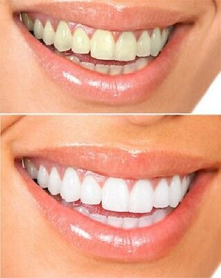 Bright Smiles 44% 10ml Teeth Whitening Gel Kit Syringe Tooth Bleaching Home