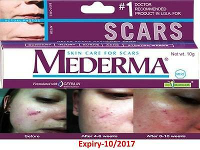 Mederma for Skin Care Scars STRETCH ACNE BURN Surgery MARK REMOVAL treatment 10g