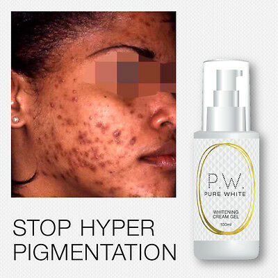 Pure White Whitening Cream-Gel Stops Pigmentation And Dark Patches Fades