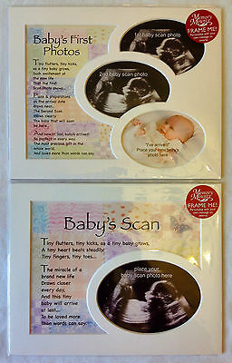 Baby Scans / Baby's First Photos, 1st Birthday Keepsake Photo Frame Mounts