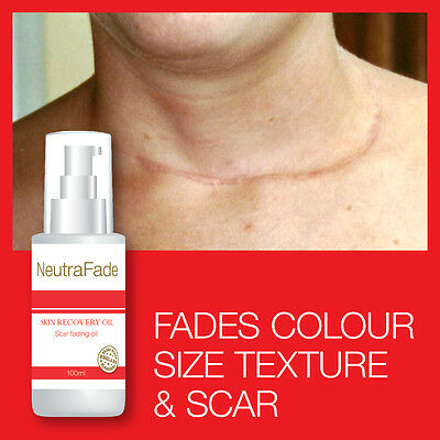 Neutra Fade Skin Recovery Oil Scar Fading Oil – Old Or New Scars Are Gone Fast