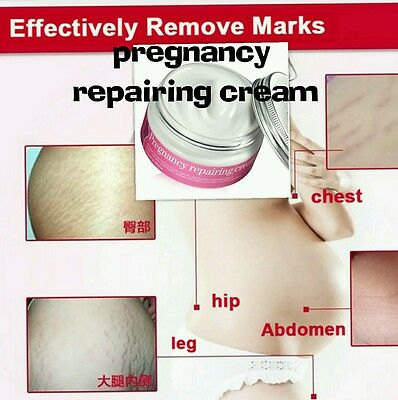 Herbal Formula Stretch Mark Remover Cream Strong Strength Pure Natural Uk Seller