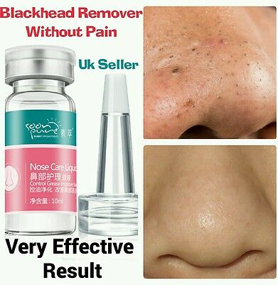 Painless Treatment For Blackhead Whitehead  Pimple Acne Blemish Comedone Spots