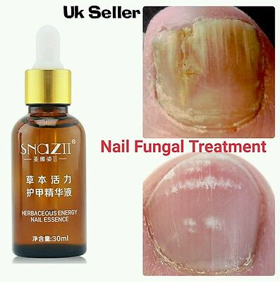 Herbal Treatment Fungal Nail Toe Nail Finger Fungus Infection For Best Result