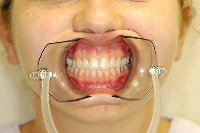 Small Disposable Cheek Retractor. Perfect for What's your Mouth game. Clear Soft