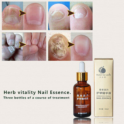 Herbal Essence Nail Care Treatment Essential Oil 30ml Onychomycosis Remove Serum